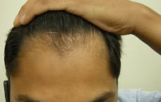 Strand by Strand Surgical before FUE