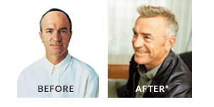 Greg Matthews Hair Loss Before After