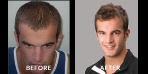 John 'Jack' Anthony Hair Loss