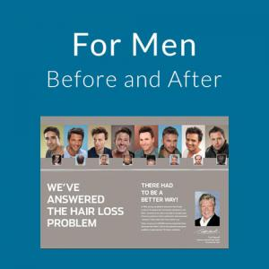 For Men Hair Loss Before After