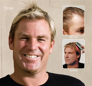 Strand-by-Strand-shane-warne-after