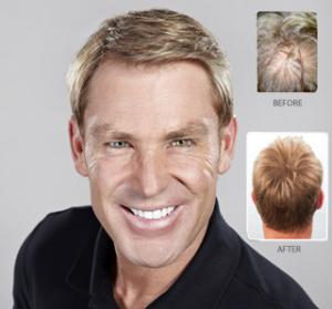 Strand-by-Strand-shane-warne-before