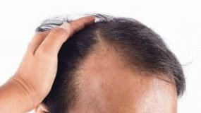 What is a Bald Spot on Your Head?