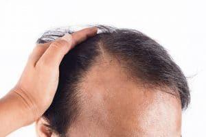 Bald Spot on Head