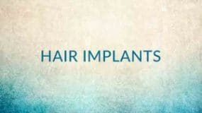 What are Hair Implants?