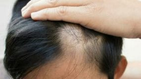 How to Fix Bald Spots