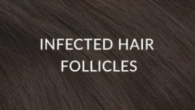 Infected Hair Follicles