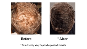 Stem Cell Hair Therapy Before After Photo