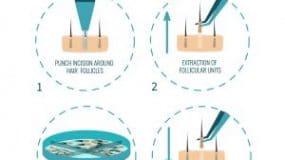 FUE Versus FUT Hair Transplants