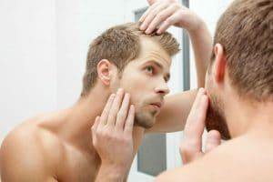 Propecia and Hair Loss