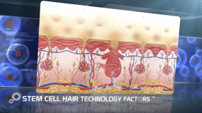 Stem Cell Treatment United Kingdom