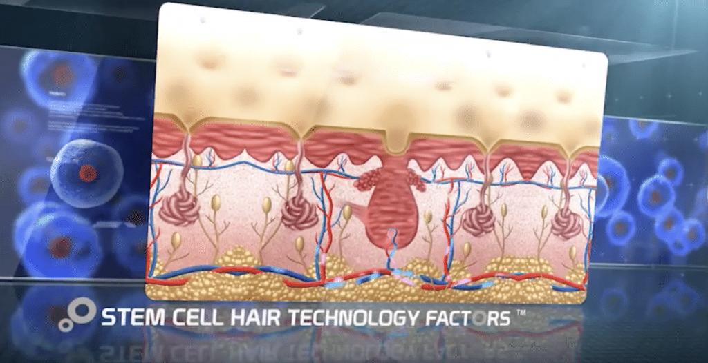 Stem Cell Treatment in Australia