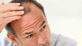 Why Does Hair Fall Out for Men?