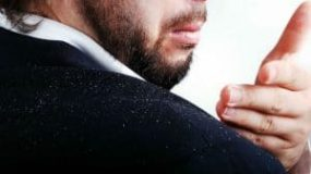Dandruff And Hair Loss: What's the Link?
