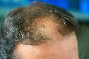 Hair-Implants-Cost-That-Everyone-Can-Afford-300x200