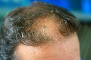 Hair Implants Cost That Everyone Can Afford
