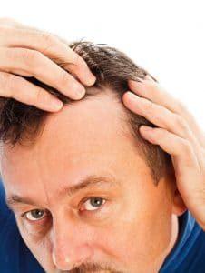 Hair-Loss-Symptoms-226x300