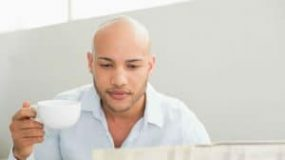 Keep An Eye Out: Signs Of Going Bald
