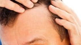 Hair Loss Symptoms: Everything You Need to Know About Hair Loss Causes, Signs & Problems of Pattern Baldness