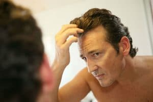 All Your Genetic Hair Loss Questions Answered